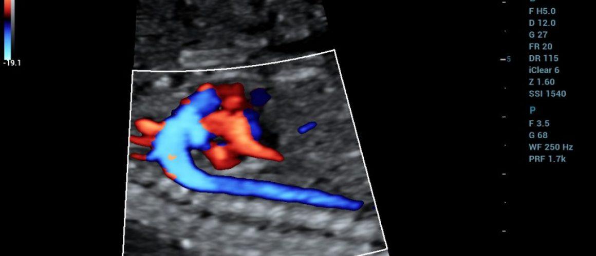 SC5-1U_OB2_Fetal Heart_Color_3