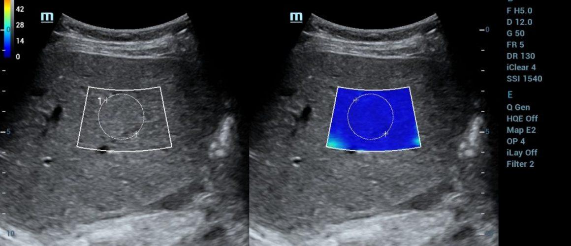 STE1 SC5-1U_Liver_Fibrosis_STE_1_R7